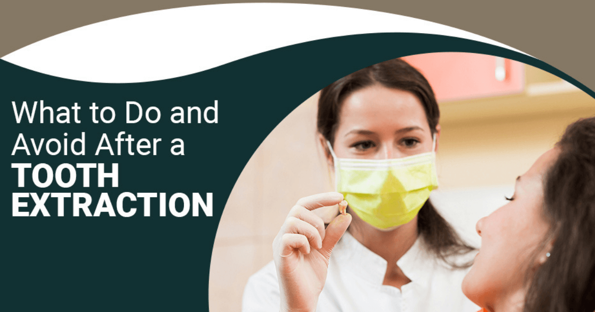 What to Do and Avoid After a Tooth Extraction
